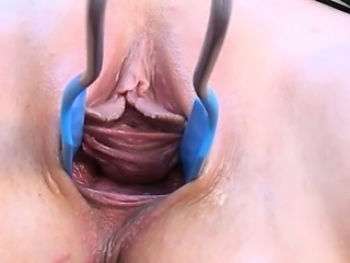 Gyno vibrator and pussy gapped very hard